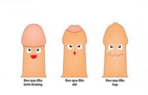 Bao quy đầu của nam giới bị dài hoặc hẹp bao quy đầu