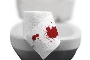 Chảy máu hậu môn – triệu chứng bệnh trĩ