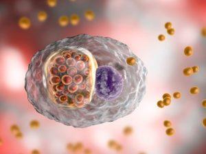 Tinh trùng màu vàng đục do bệnh lây qua đường sinh dục