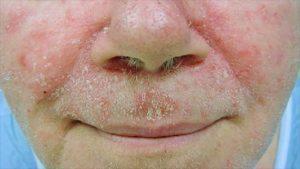 Biểu hiện viêm da dầu ở mặt