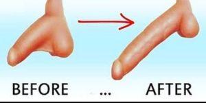 Phẫu thuật kéo dài dương vật là gì?