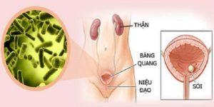 Viêm tinh hoàn không do nhiễm khuẩn