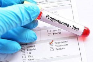 Nồng độ progesterone: