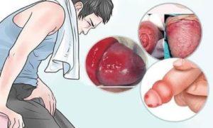 Viêm bao quy đầu – Khiến bao quy đầu bị đỏ