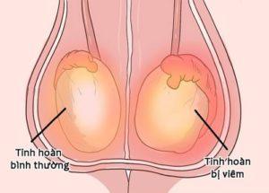 Triệu chứng viêm tinh hoàn giai đoạn cấp tính