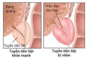 Viêm tuyến tiền liệt nhiễm khuẩn mạn tính