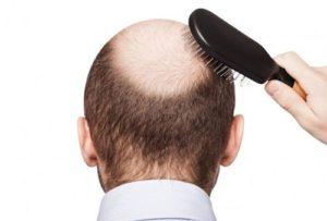 Rụng tóc là dấu hiệu suy giảm testosterone