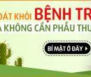 thuoc-chua-benh-tri